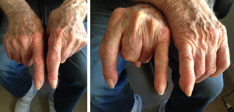 Lorayne hands
